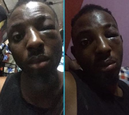 Angry Girlfriend Hires Area Boys To Beat Boyfriend Who Slapped Her